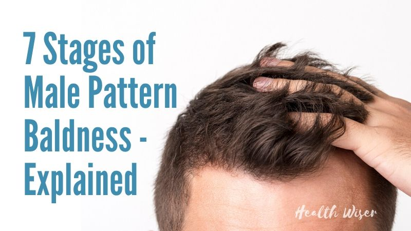 7 stages of male pattern baldness explained